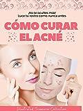 Cómo curar el acné: Valiosos métodos para prevenir y curar el acné. Evitar complicaciones más graves y puedas lucir una piel sana: ¡No te ocultes más!, luce tu rostro como nunca antes